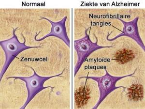 ALZHEIMER. links; gezond weefsel rechts; amyloïde plaques.