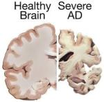 """.. Hersenschade door Alzheimer.."".."