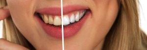 tandkrijt maakt schoon