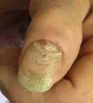 Nagel-met-infectie