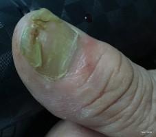 Een-lelijke-geïnfecteerde-nagel-waar-een-vrouw-niet-blij-mee-is
